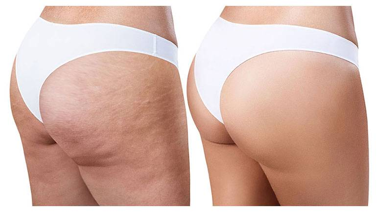 ENDERMOLOGIE-Cellulite-W1TanningandBeauty-Treatments.jpg